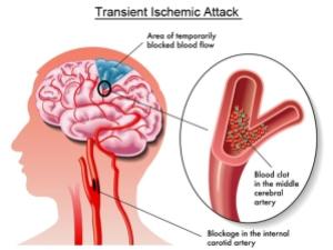 Transient-Ischemic-Attack